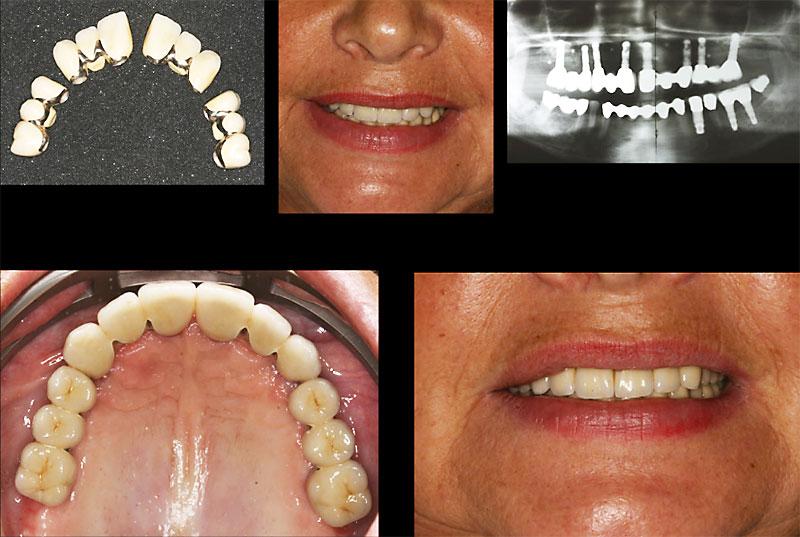 Bilder von Hintern Implantaten